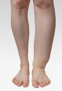 Lymfødem i ben / Ben med lymfødem